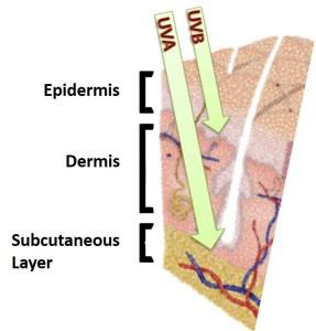 Skin diagram 1